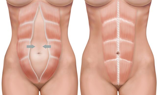 Razmicanje trbušnog zida – diastaza